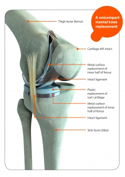 arthritis queensland - knee replacement surgery are there, Skeleton